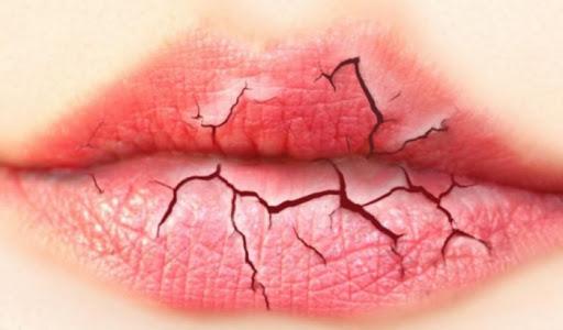 6 способів уникнути потрісканих губ