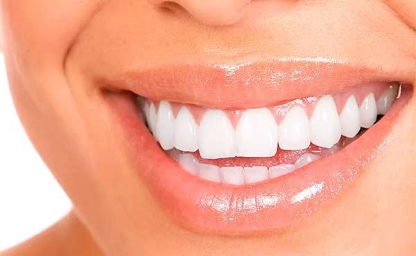 Від бездоганного ідеалу до природності: як змінилися стоматологічні тренди