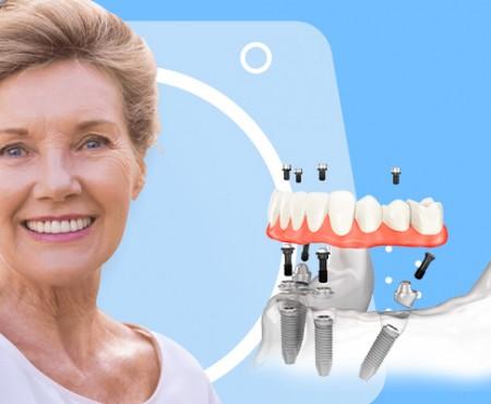 Всі зуби на чотирьох імплантатах: як повернути посмішку при повній адентії
